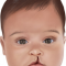 Cara Mengatasi Bayi Bibir Sumbing atau Celah Bibir dan Langit-Langit (CBL)